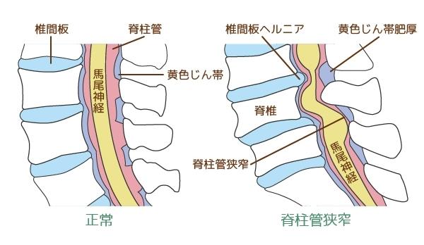 松江市みどり整体 脊柱管狭窄症
